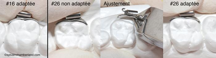 Tube convertible SPEED. Ajustement de la base collante large sur un modèle de pierre-Dr Chamberland orthodontiste à Québec