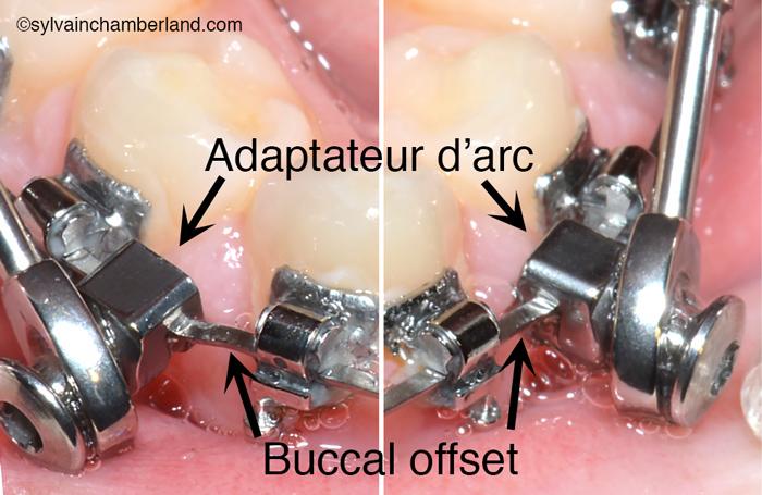 Buccal offset fil inférieur SUS2-Dr Chamberland orthodontiste à Québec