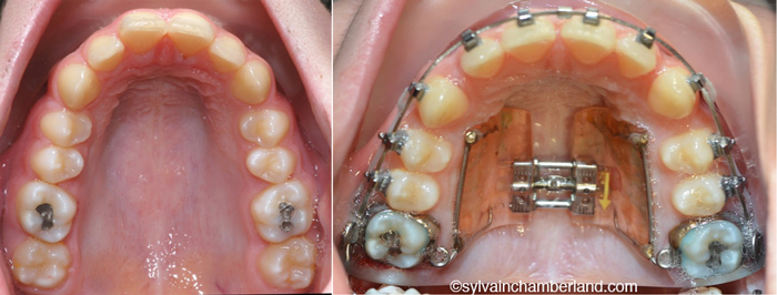 Hilgers expander-Dr Chamberland orthodontist in Quebec City