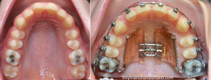 Appareil d'expansion Hilgers-Dr Chamberland orthodontiste à Québec