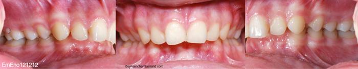 Classe II div 1-Dr Chamberland orthodontiste à Québec