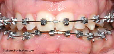 JuLa orthodontie adulte appareils fixes-Dr Chamberland orthodontiste à Québec