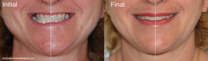 Facial asymmetry to the right and mandibular Class III-Dr Chamberland orthodontist in Quebec City