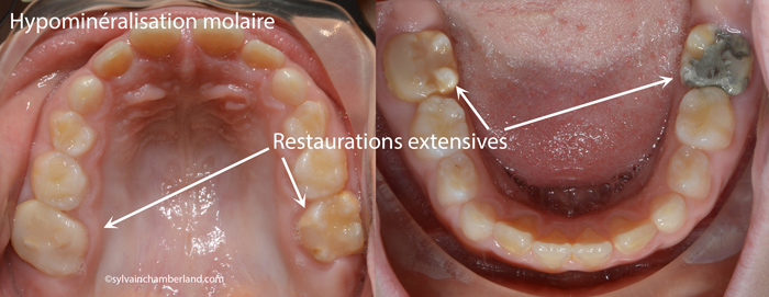 Hypominéralisation molaire-incisive MaBri-Dr Chamberland orthodontiste à Québec
