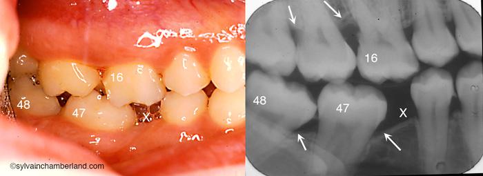 Mutilation de la dent #46 (X). Bascule mésiale des dents #47 et #48. Hyperéruption de la dent #16. Problème parodontal adjacent indiqué par les flèches.-Dr Chamberland orthodontiste à Québec