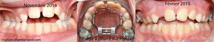 Piège à pouce sur EPR AnDub-Dr Chamberland orthodontiste à Québec
