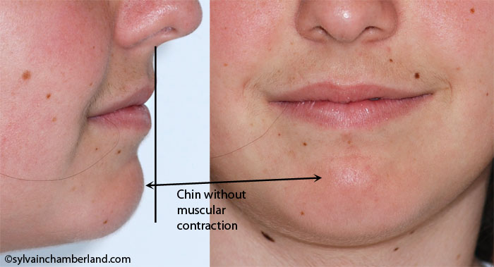 AnMACh post genioplasty face and profile-Dr Chamberland orthodontist in Quebec City