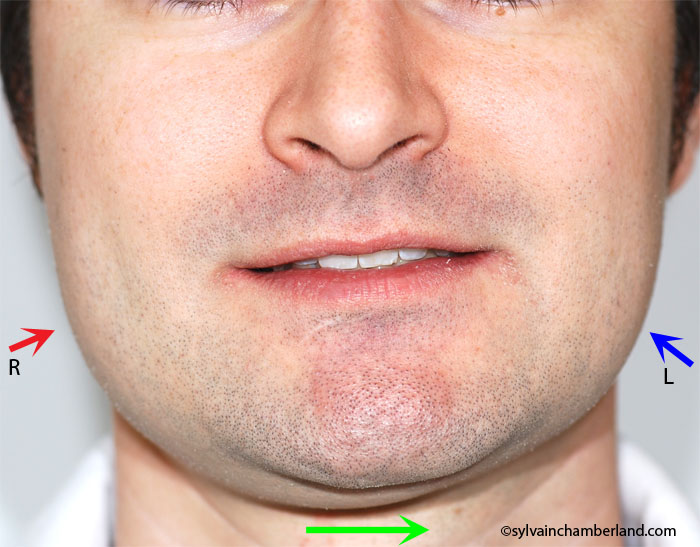 Facial asymmetry to the left right hypercondylia-Dr Chamberland orthodontist in Quebec City