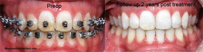 Anterior open bite MaJeBe-Dr Chamberland orthodontist in Quebec City