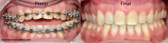 Anterior open bite PaBi-Dr Chamberland orthodontist in Quebec City