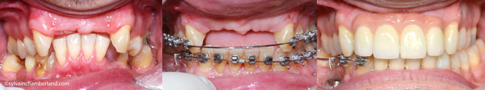 Collapse-de-la-dimension-verticale-restauration-sur-implant-SeCa-Chamberland-Orthodontiste-Quebec