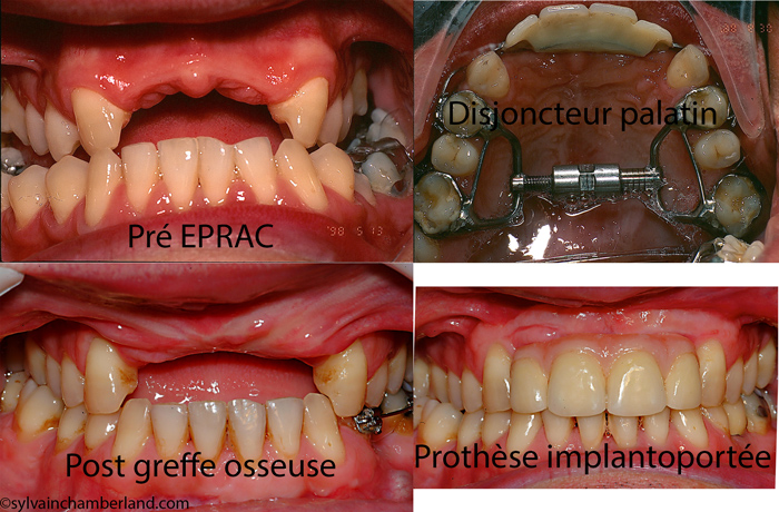 EPRAC-mutilation-des-incisives-restauration-sur-imlants-Chamberland-Orthodontiste-a-Quebec