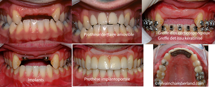 Edentation-des-incisives-greffe-corticospongieuse-restauration-implanto-portee-ChBel-Chamberland-Orthodontiste-a-Quebec