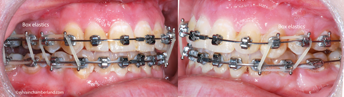 Elastiques-intermaxillaires-postchirurgie-KaLav-Chamberland-Orthodontiste-a-Quebec