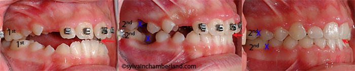 Extraction first molars anterior open bite AnPiLe-Dr Chamberland orthodontist in Quebec City