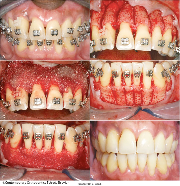 Corticotomy-induced accelerated tooth movement-Dr Chamberland orthodontist in Quebec City