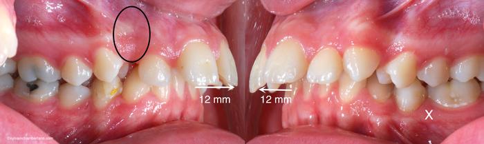 Ci Sam Dents avancées 10 mm canine incluse-Dr Chamberland orthodontiste à Québec