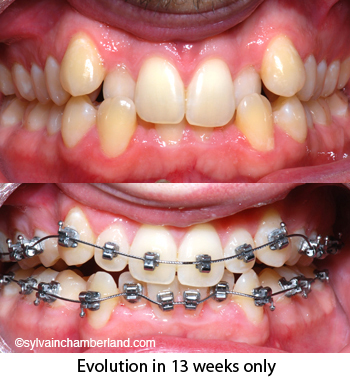 Crooked teeth why wear braces PhBer-Dr Chamberland orthodontist in Quebec City