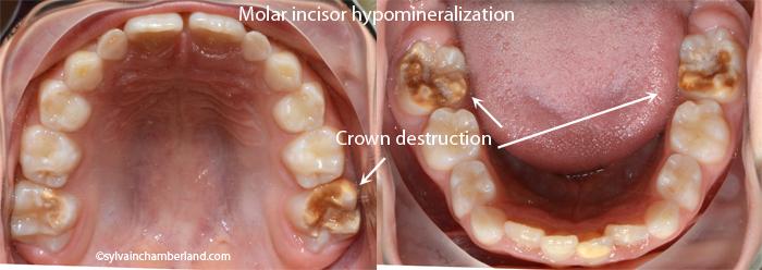 Molar incisor hypomineralization EtSav-Dr Chamberland orthodontist in Quebec City