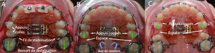Appareil d'expansion Pendulum-Dr Chamberland orthodontiste à Québec