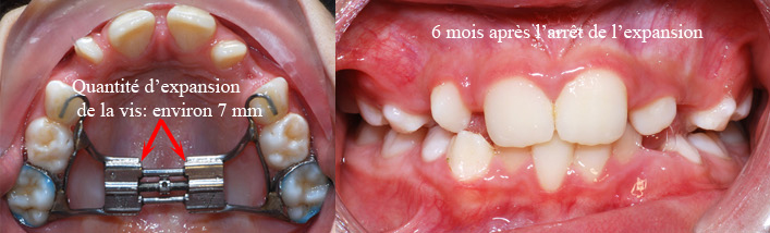 Après expansion et 6 mois plus tard-Dr Chamberland orthodontiste à Québec