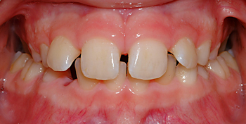 Bilateral posterior crossbite-Dr Chamberland orthodontist in Quebec City