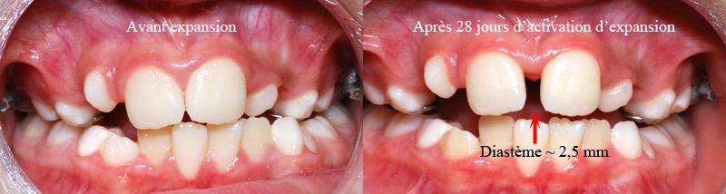 Avant et après expansion-Dr Chamberland orthodontiste à Québec