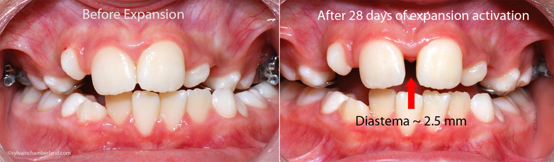 Before and after expansion-Dr Chamberland orthodontist in Quebec City