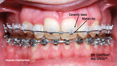 QuicKlear bracket JaMe-Dr Chamberland orthodontist in Quebec City