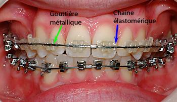Bracket Spirit-Dr Chamberland orthodontiste à Québec
