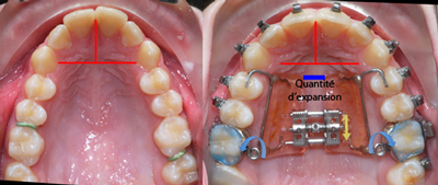 Expansion Hilgers avant après-Dr Chamberland orthodontiste à Québec