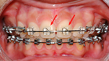 Inspire bracket-Dr Chamberland orthodontist in Quebec City