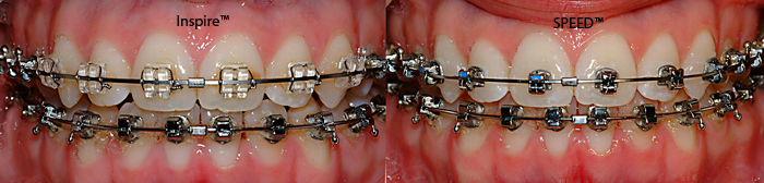 Inspire vs SPEED-Dr Chamberland orthodontist in Quebec City