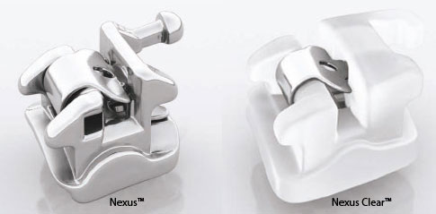 Ormco Nexus™ and Nexus Clear™-Dr Chamberland orthodontist in Quebec City