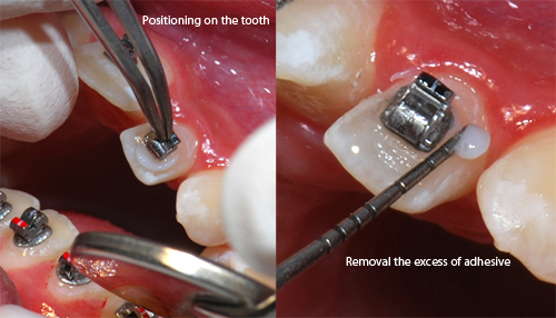 Installing the bracket on tooth-Dr Chamberland orthodontist in Quebec City