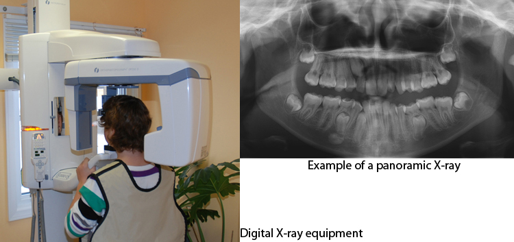 Taking panoramic X-rays-Dr Chamberland orthodontist in Quebec City