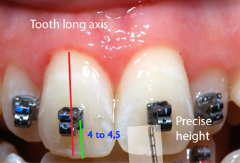 Precise positioning of brackets-Dr Chamberland orthodontist in Quebec City