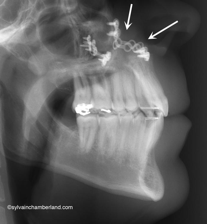 Fixation-rigide-pres-du-nez-Chamberland-Orthodontiste-Quebec