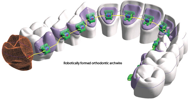 HARMONY robotically formed archwires-Dr Chamberland orthodontist in Quebec City