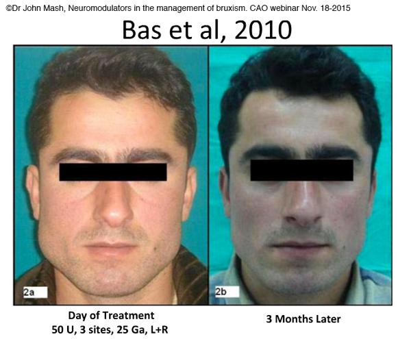 Hypertrophie du masséter et Botox-Dr Chamberland orthodontiste à Québec