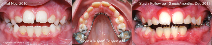 Piege-a-langue-et-beance-anterieure-Chamberland-Orthodontiste-a-Quebec