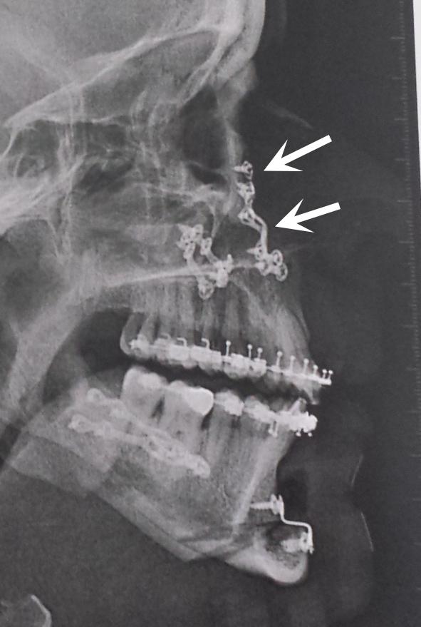Valerie-fixation-rigide-Chamberland-Orthodontiste-a-Quebec