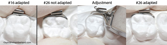 SPEED convertible tube. Adjustment of the wide bonding pad on a stone model-Dr Chamberland orthodontist in Quebec City