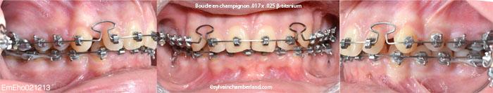 Progression à 43 semaines fil 17x25 boucle en champignon-Dr Chamberland orthodontiste à Québec