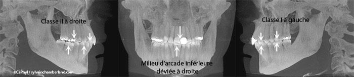 Asymétrie faciale-Dr Chamberland orthodontiste à Québec