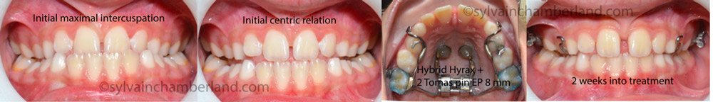 Protraction facemask - Dr Sylvain Chamberland Orthodontiste