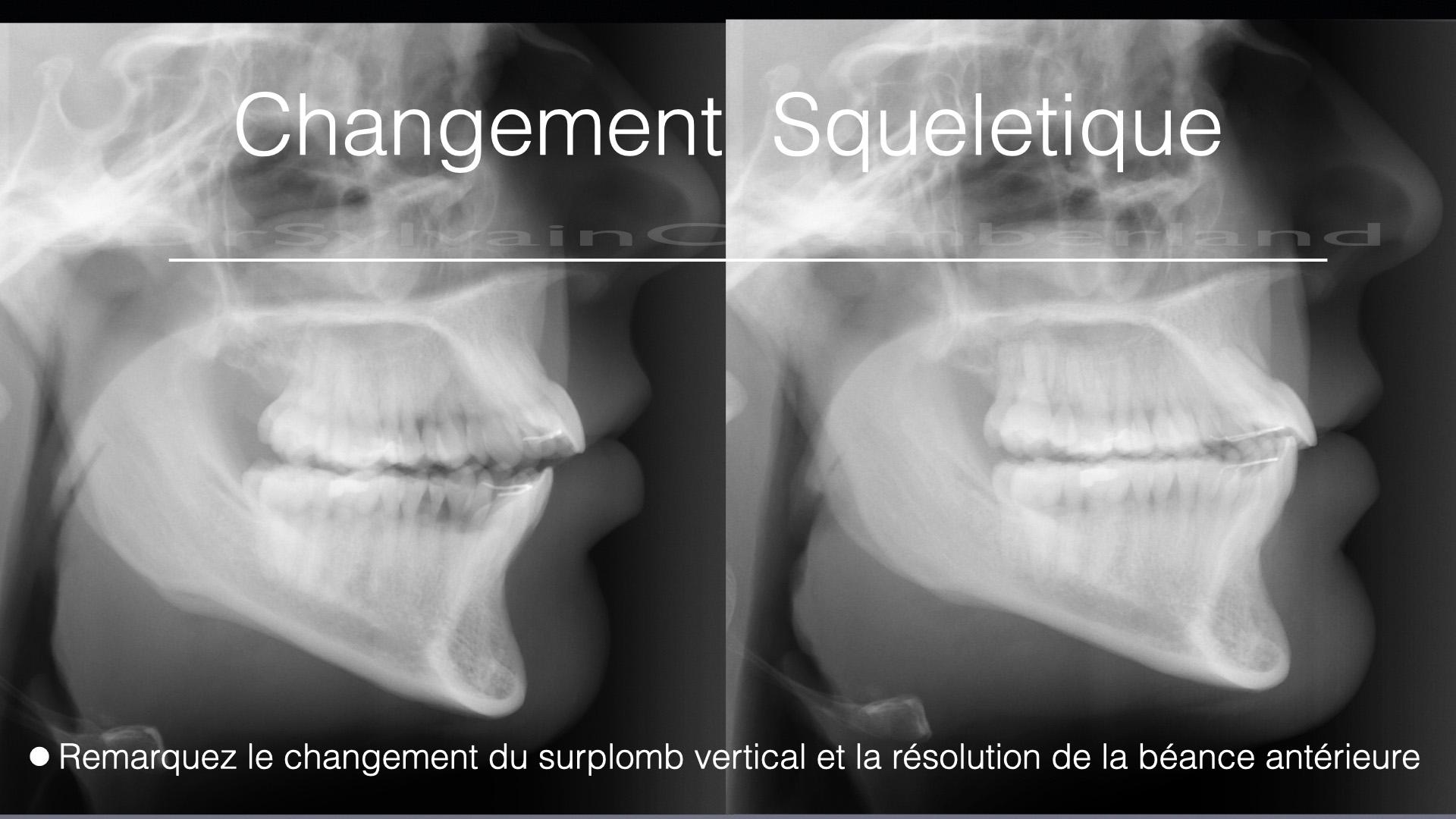 Changement squelettique