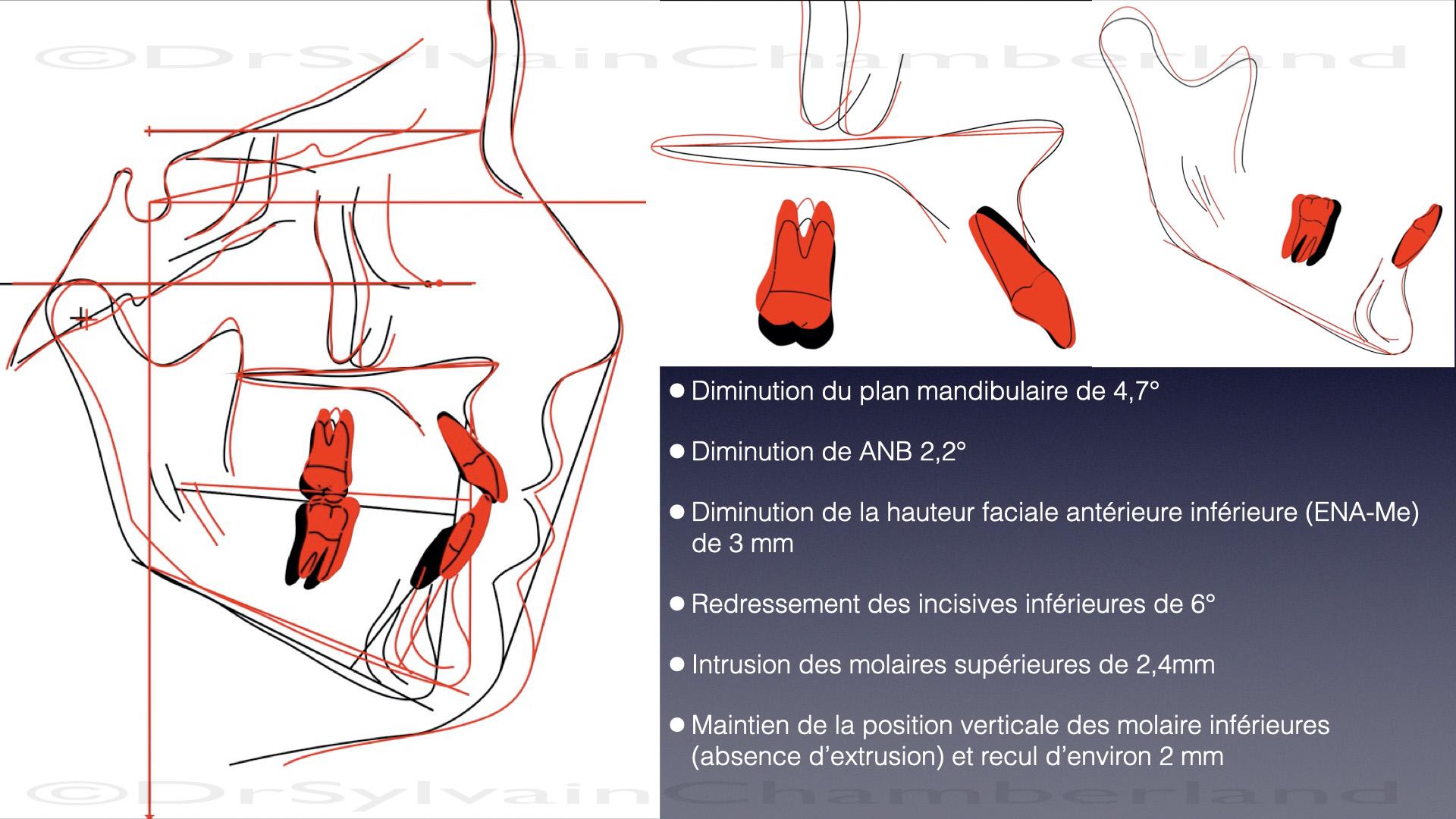 Description des changements dentosquelettiques