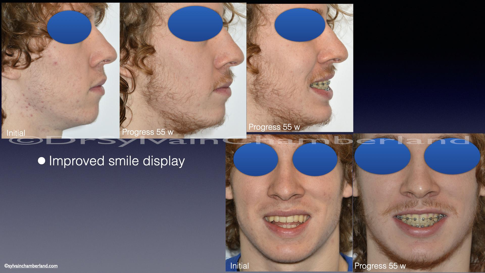 Comparaison du sourire