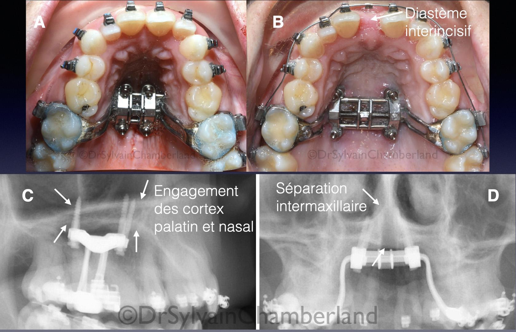 Vue intraorale de l'appareil MSE et téléradiographie